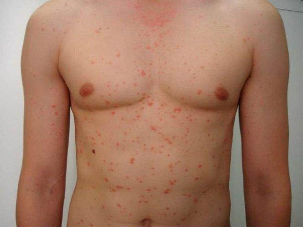 Тело молодого человека с многочисленными кожными высыпаниями