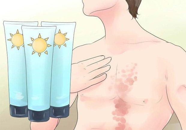 Крема при лечении псориаза отзывы