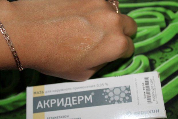 Мази и крем акридерм при псориазе лечение