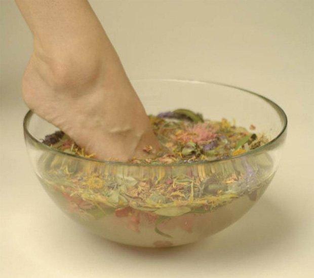 Псориаз Лечение Домашними Средствами