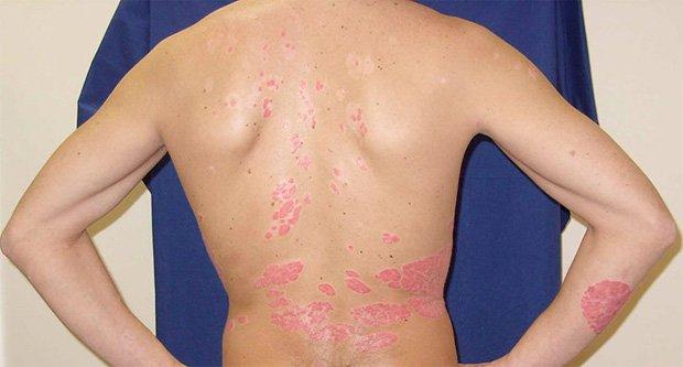Спиной стоит человек с проблемными высыпаниями на коже