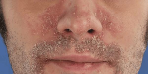 Фото 1. Псориаза на лице