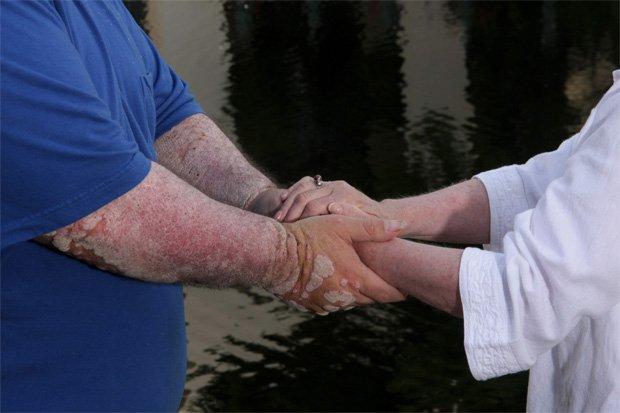 Человек держит за руки больного псориазом человека