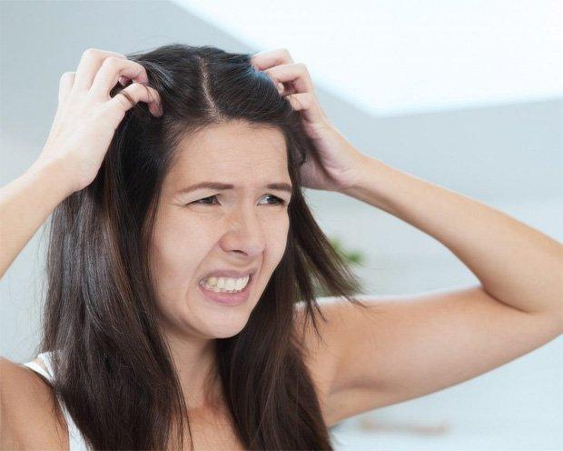 Женщина усиленно чешет голову из-за возникшего зуда
