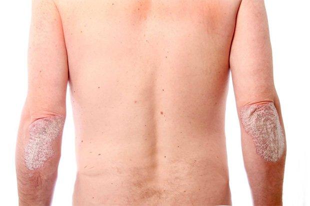 Человек стоит и спиной и на локтях у него кожные высыпания