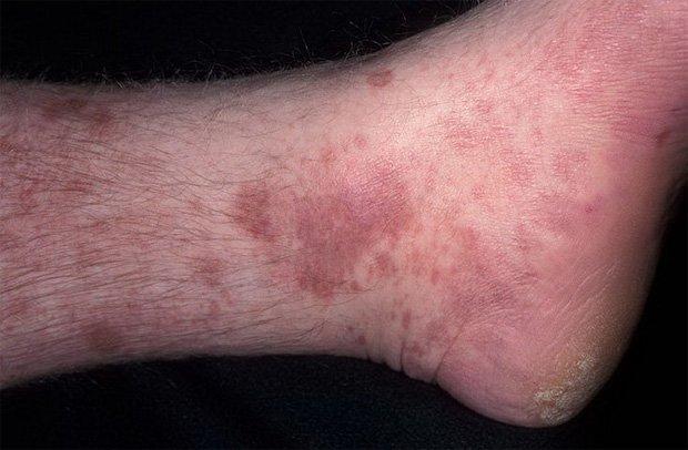 Нога человека, больного лишаем вида красный плоский
