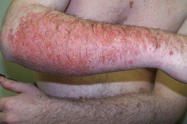 Руки мужчины, больного запущенным дерматитом