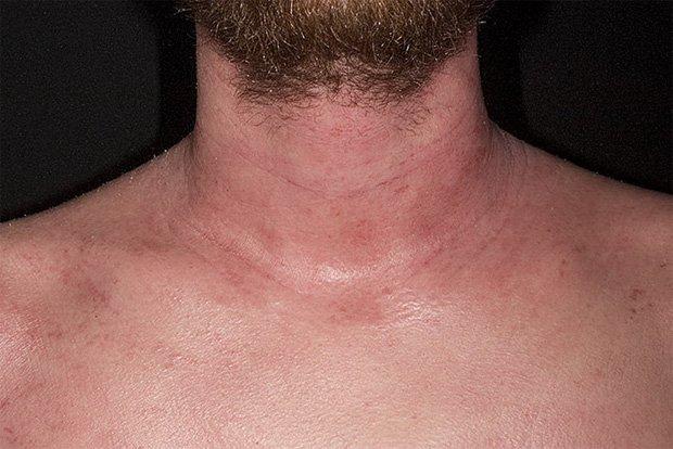 Шея и грудь мужчины с диагнозом атопический дерматит