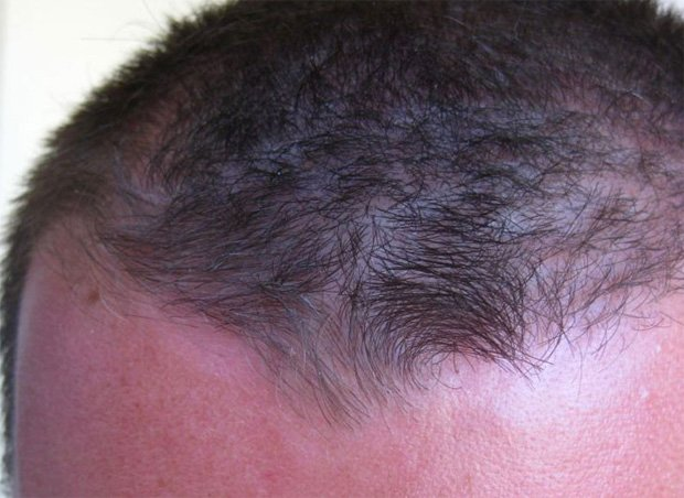 На голове у мужчины начальная стадия высыпаний псориаза