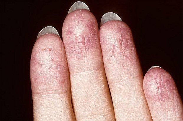 Подушечки пальцев женщины, страдающей псориазом