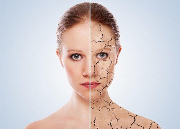 Девушка с двумя видами кожи - больной и здоровой