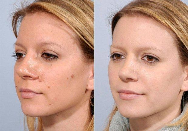 Шрамы после удаления родинок на лице