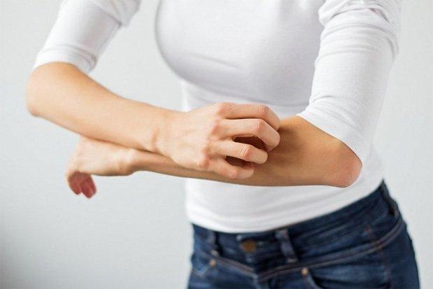 Девушка в белом свитере сильно чешет свою руку