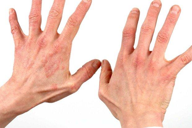 Руки мужчины, который болен одним из видов псориаза