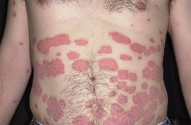 Тело человека, страдающего заболеваниями кожи