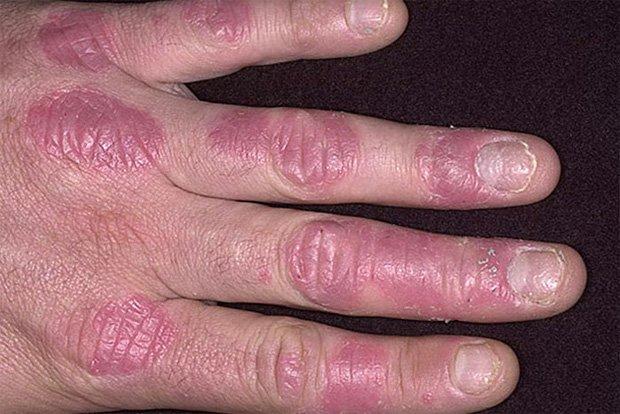Рука человека, покрытая бляшками псориаза
