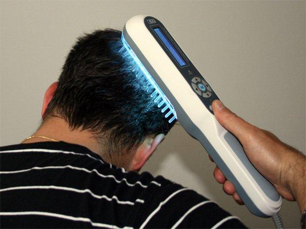 Мужчина лечит голову физиотерапевтической расческой