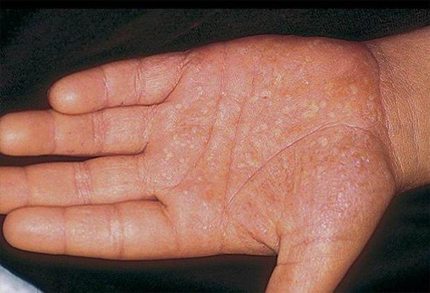 Ладонь человека с пораженной от псориаза кожей