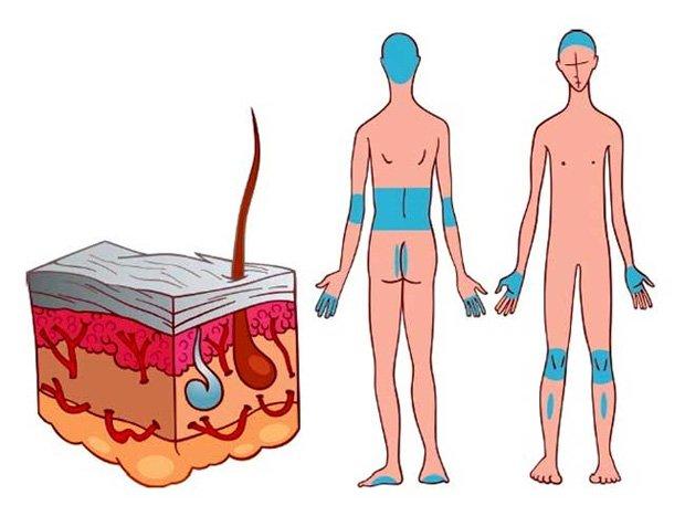 Схематическое изображение уязвимых для псориаза участков кожи