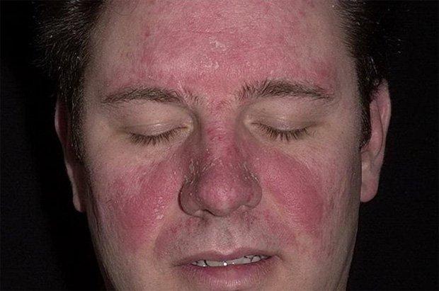 Лицо мужчины, покрытое псориазом вида себорейный