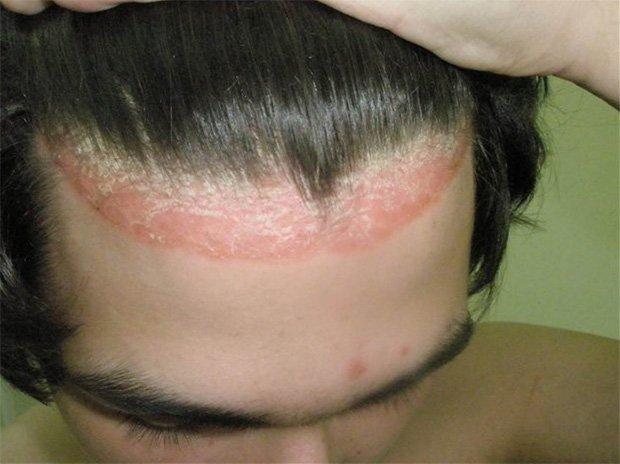 Мужчина зачесал волосы назад и показывает псориаз