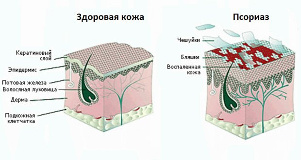 Схематическое изображение здоровой и больной кожи головы