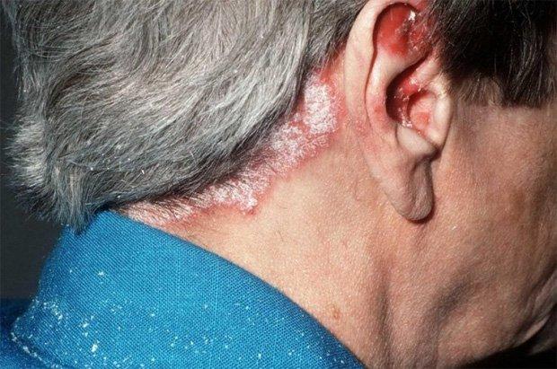 Пожилой мужчина стоит полубоком и показывает заболевание кожи головы