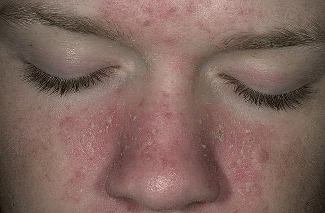 Фото 2. Гиперергическая форма псориатической эритродермии