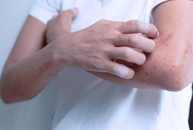 Девушка с пластырем на пальцах чешет свои руки