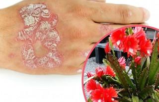 Лечение псориаза кактусом
