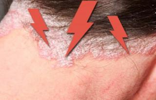 Проявление псориаза на шее