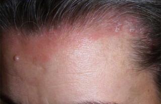 Народные и фармакологические средства от псориаза на голове