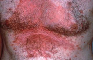 Псориаз груди