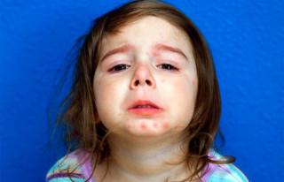 Детский псориаз
