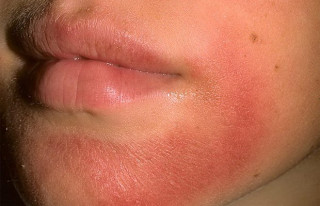 Псориаз на лице - вся информация о заболевании